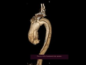 Врачи впервые провели операцию по линейному протезированию восходящего отдела и дуги аорты в Елизаветинской больнице